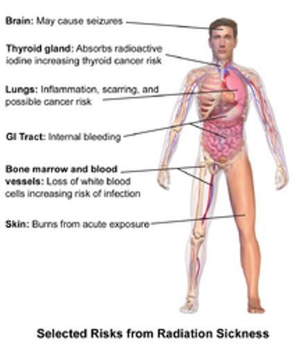 radiation poisoning facts