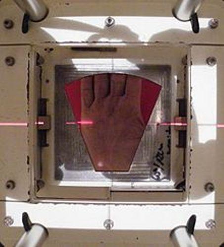 radiation therapy portal