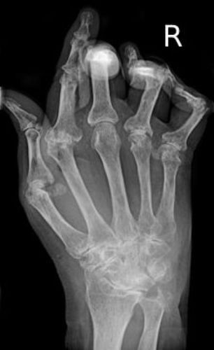 Facts about Rheumatoid Arthritis