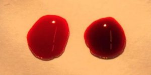 Red Blood Cells Facts