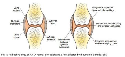 Rheumatoid Arthritis Facts