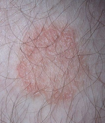 facts about Ringworm