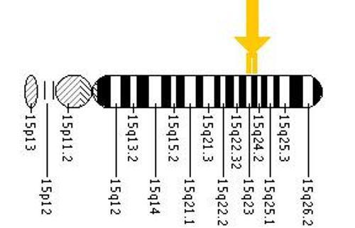 Tay Sachs Disease Pic