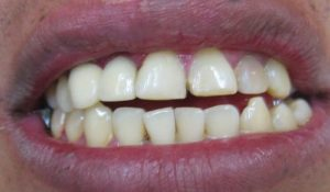 Tooth Whitenig